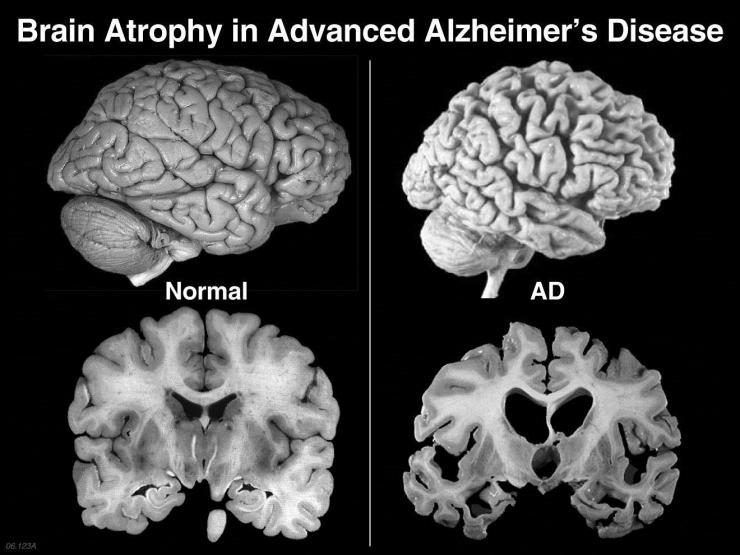 Brain Atrophy in Alzheimer's disease
