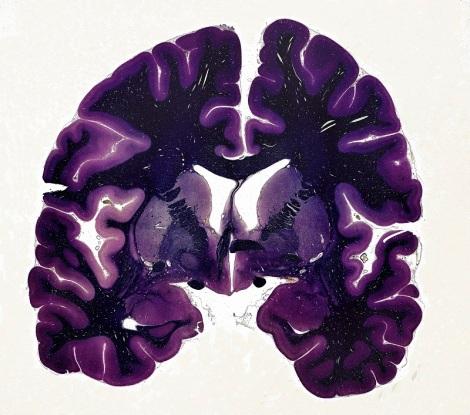 B0009564 Human brain, coronal section, LM