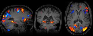 Memory_fMRI